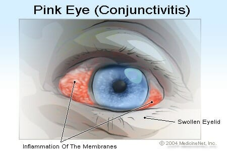 Conjunctivitis, or Pink Eye
