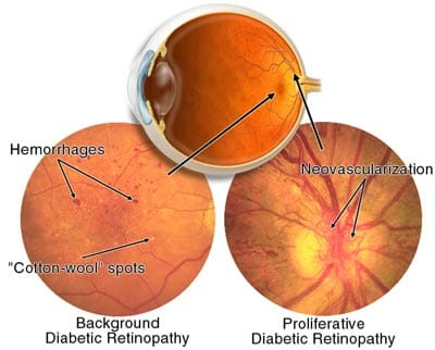 Image Diagram of Diabetic Retinopathy