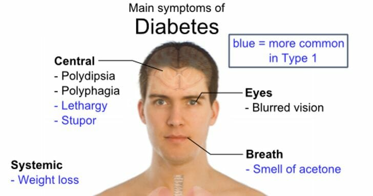 diabetes common symptoms